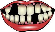 dental,health,kiss,tooth,teeth,mouth,body,hygiene,smoking,coffee,tea,parodontitis,periodontitis,fall out