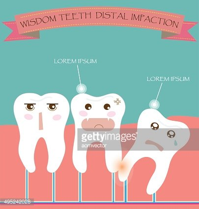 Wisdom Teeth Distal Impaction