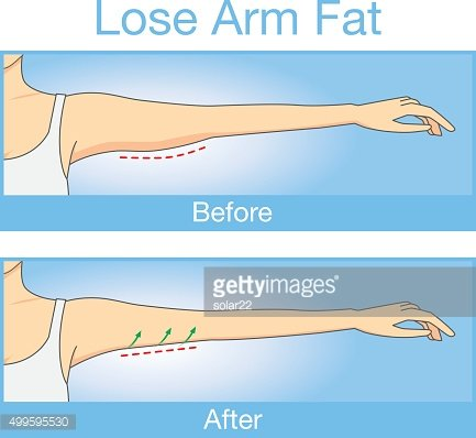 Before and after lose arm fat