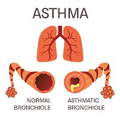 Normal and asthmatic bronchioles