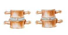 Spine - Cushioning Function of Intervertebral Discs