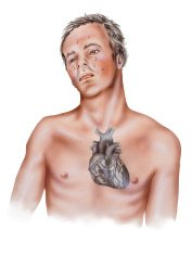 Heart - Attack Symptoms in a Male Patient