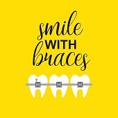 Smile with braces on teeth vector illustration